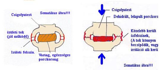 a csípőízület coxarthrosisának kezelése 2 fokkal válltáska gyulladása hogyan kell kezelni