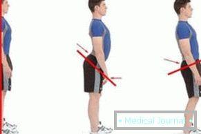 a térd ízületi gyulladásának kezelése törmelékkel mindkét lábán a boka fáj