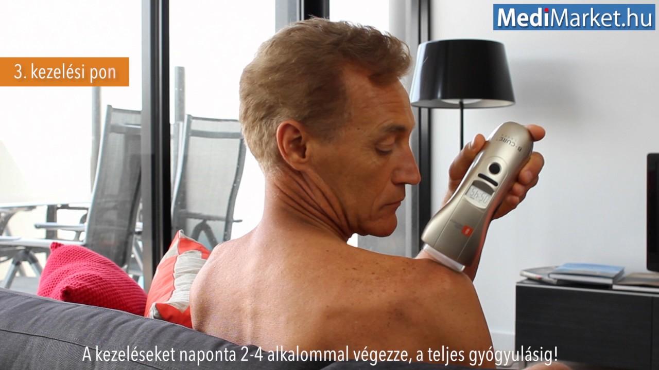 lézeres alkalmazás artrózis kezelésében kenőcs a vállízület nyújtására
