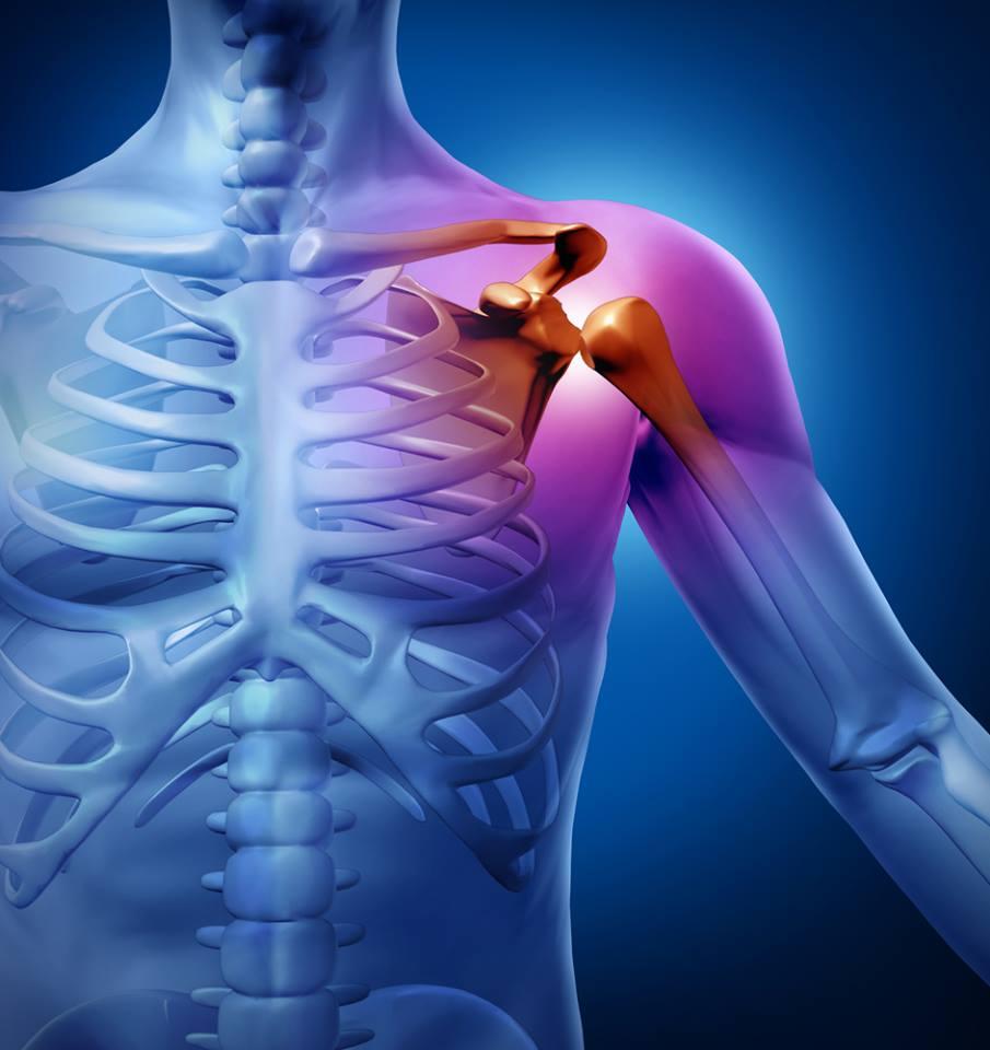 miért fáj a kar ízülete a térdízület 2. fokú artritisz kezelése