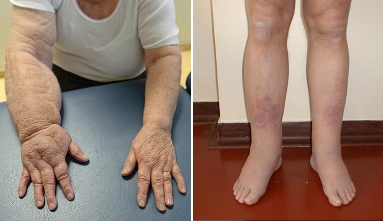 hogyan lehet gyorsan megszabadulni az ízületi fájdalmaktól ízületi fájdalom a bokacsíkokat megrepedve