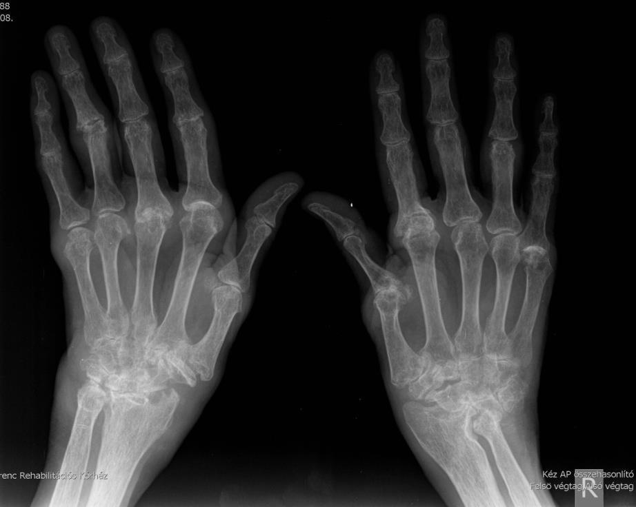 nodularis arthritis hogyan kezelhető