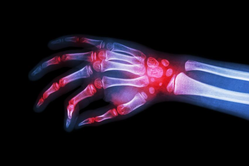 fertőző mononukleózis és ízületi fájdalmak
