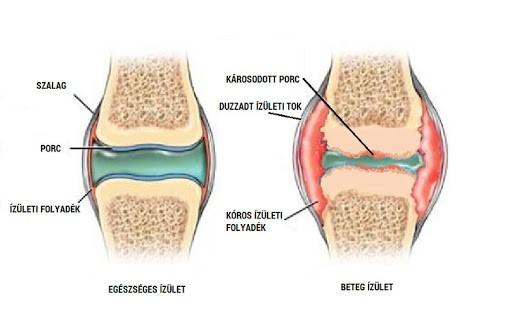 Joint Protex Forte - Az izület vitaminja Calivita izület vitamin, izületvédő