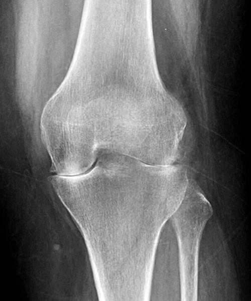 A térd osteoarthritisének kezelése PAAG-OA-val