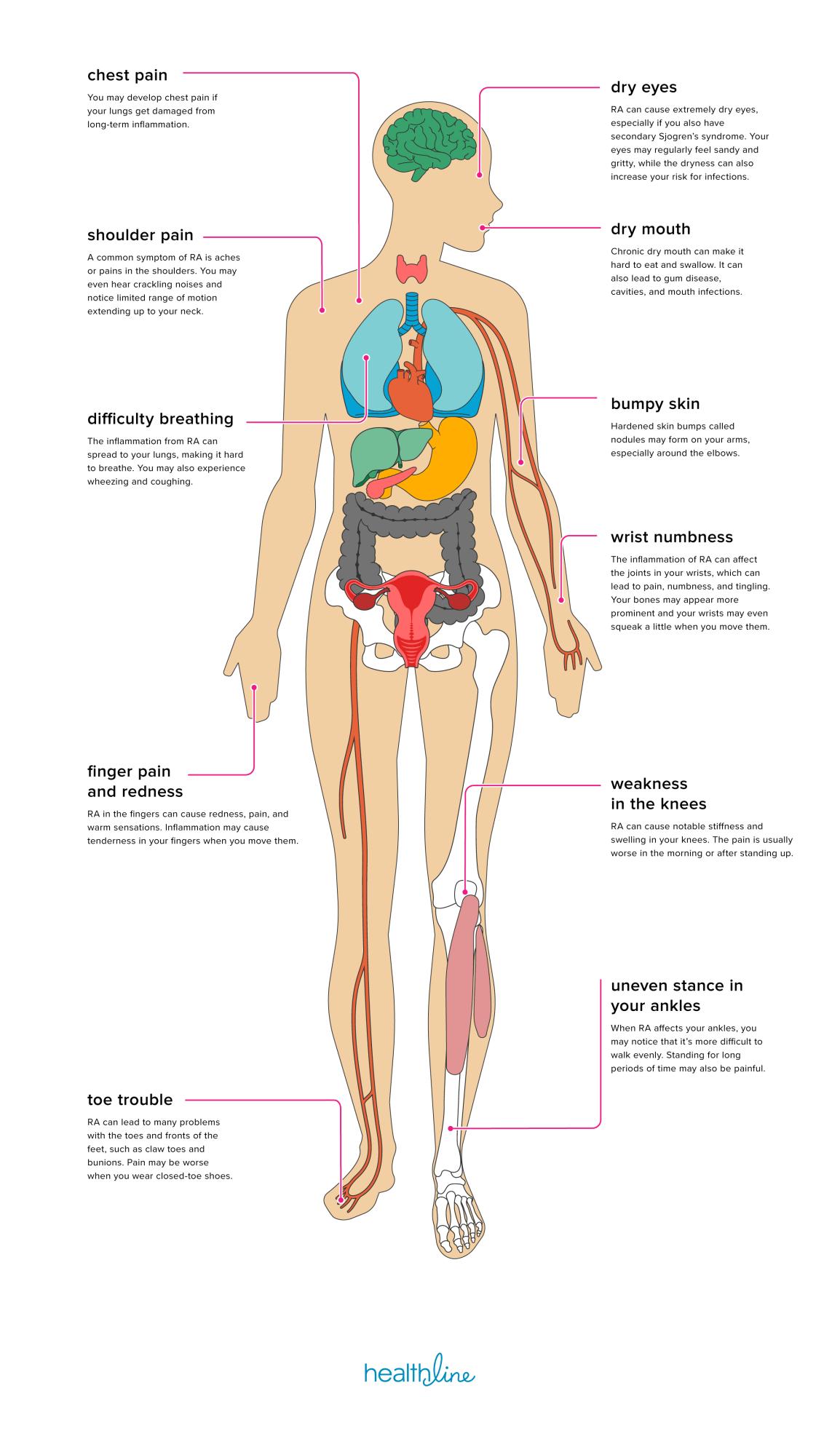 rheumatoid arthritis stages hogyan kezeljük a térdízületi gyulladást orvosi epevel