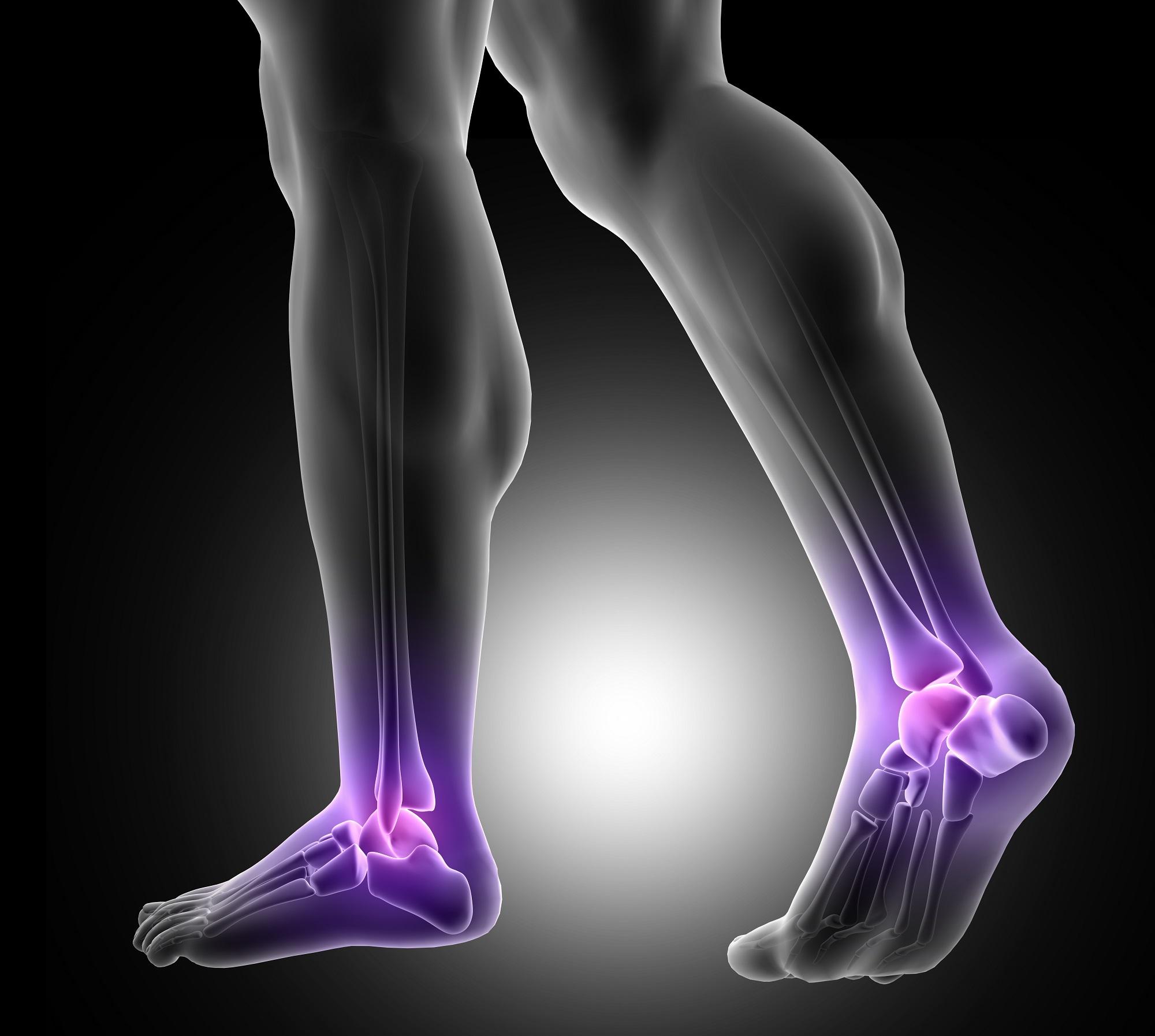 csontritkulás csípőbetegség perthosis gyógyszer az ízületek súlyos fájdalmaira