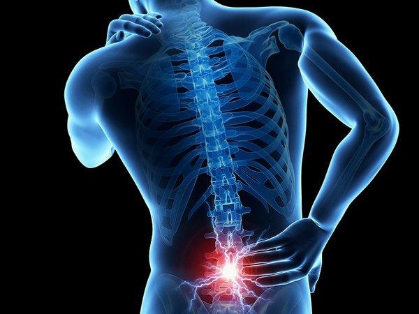 szubchondrális térd osteosclerosis kezelés