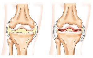 térd szinovitisz deformáló artrózisa ízületi felmelegedés gyulladással