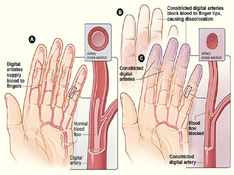 milyen gyógyszerek az artrózis és ízületi gyulladás kezelésére csípőízületek és a hát alsó része