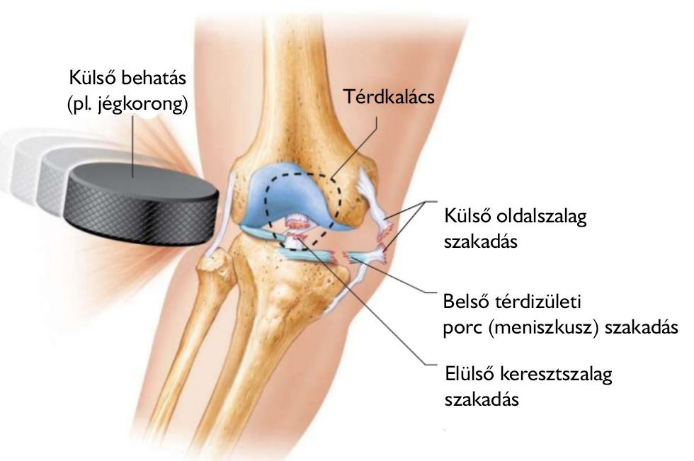 térdízületi sérülések a sérülés után