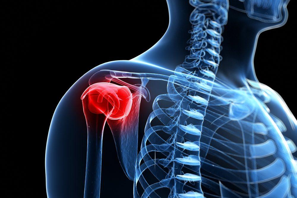 váll scapularis artrózis kezelés