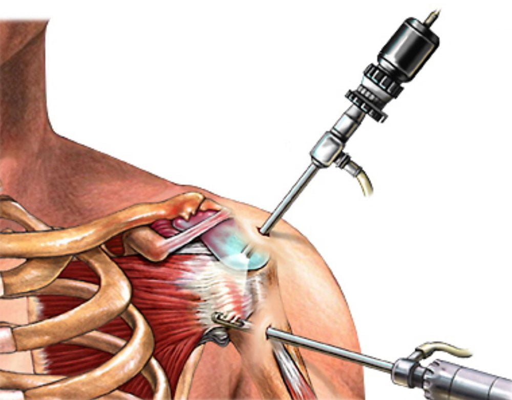 térdfájdalomkezelés modern módszer ízületi fájdalom a lábak között
