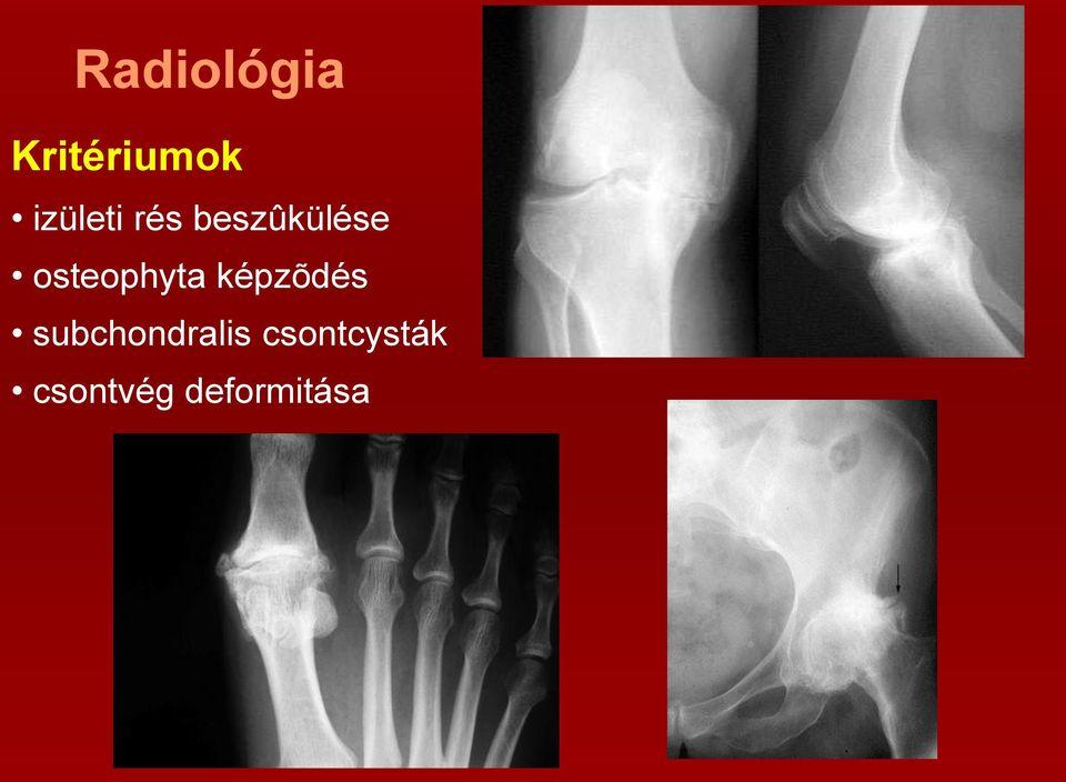 1 fokos vállízület artritisz kezelése