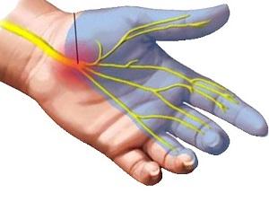 ízületi fájdalom a kéz hüvelykujját kezelve együttes kezelés a tengerparton