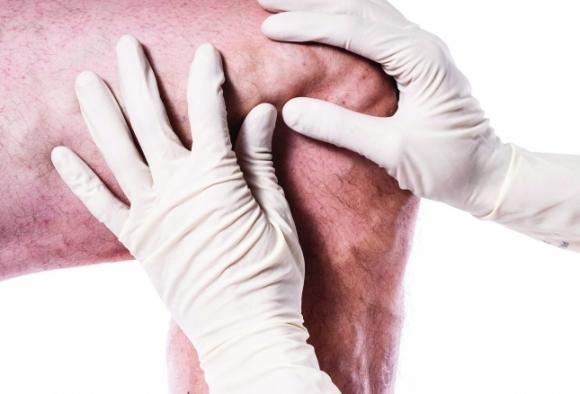 ízületi gyulladás objektív tünetei