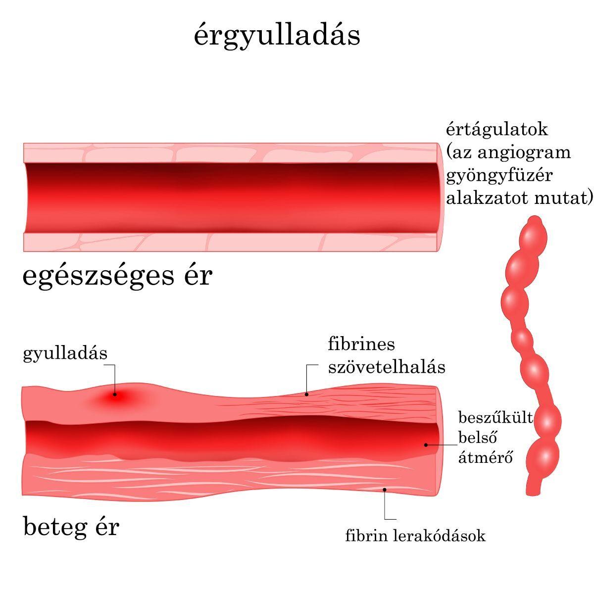 Vasculitisek, érgyulladások - Immunözpont