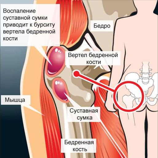 hogyan lehet kiküszöbölni a csípőízület fájdalmát