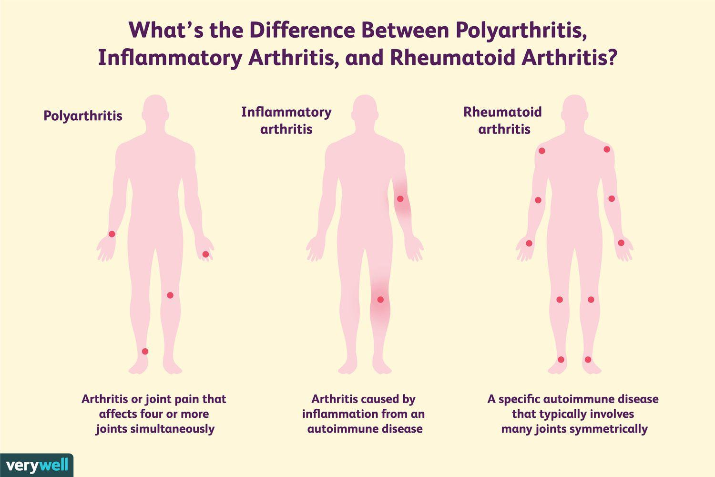 Tocilizumab-Atlizumab Overview