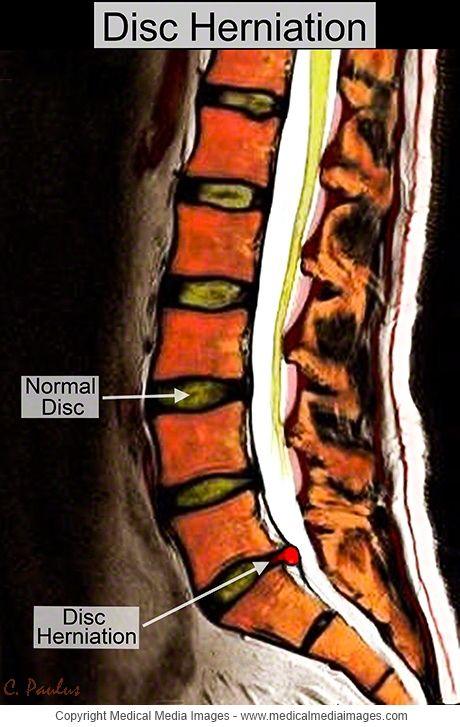 lumbosacral fájdalom a csípőízületben ízületi gyógyszerek teraflex vélemények