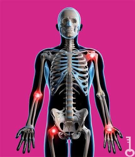 gyógyítható a térd deformáló artrózisa
