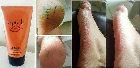 big toe arthritis kenőcs