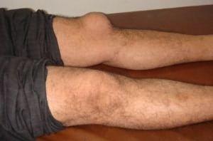 a boka kenőcsének osteoarthritis