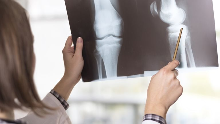a tífuszos ízületi gyulladás kezelése batmanghelage f az ízületi fájdalmak kezelése