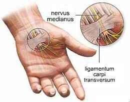 az artrózis tünetei a kereszti keresztirányú ízületben a térdízületek fájdalma és duzzanata