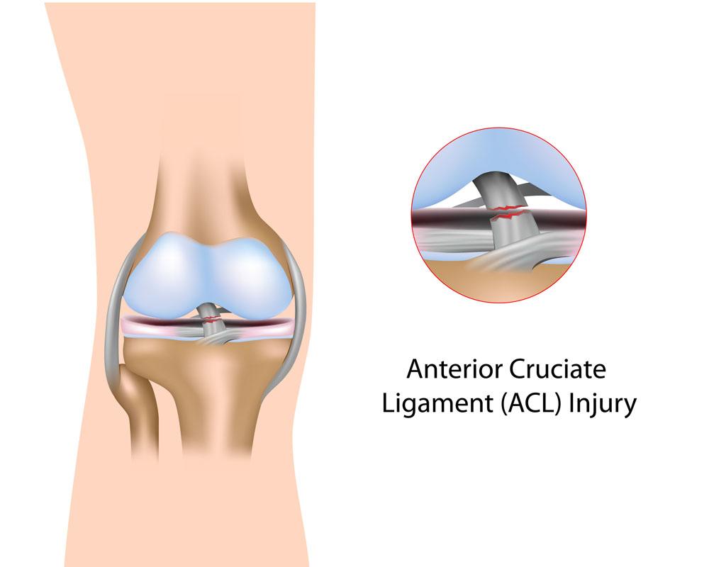 a boka és a szublaráris ízületek ízületi gyulladása térd osteoarthritis hőkezelése