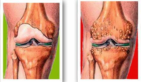a térd koksz artrózisa