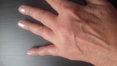 hogyan lehet kiegyenesíteni az ujjait ízületi gyulladás után