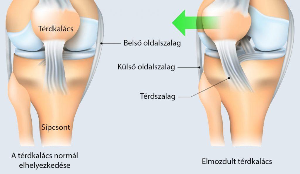 a térd ízületi gyulladásának kezelése törmelékkel
