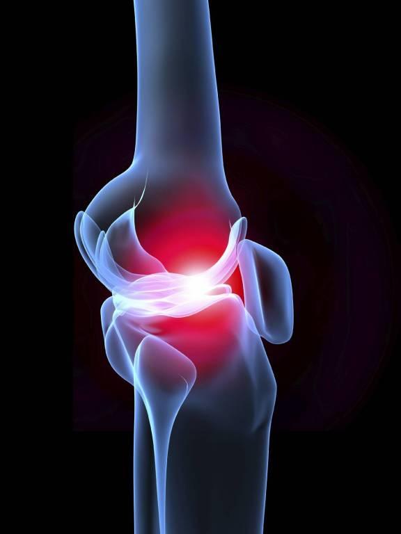 fájó ízületek kenőcs ízületi fájdalom a sacrumban