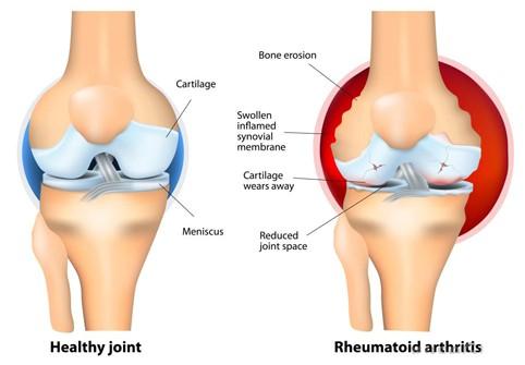 kenőcs a térd osteoarthrosisához