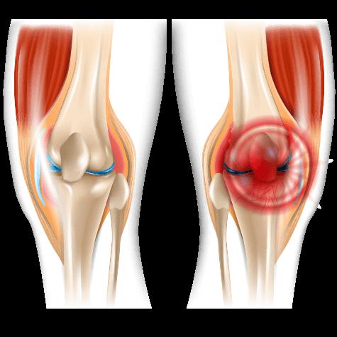 váll fájdalom nyugalomban akut fájdalom a lábízület kezelésében