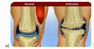 rheumatoid arthritis radiology knee
