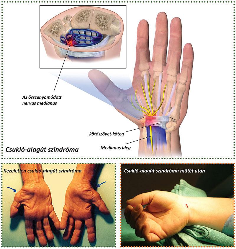 Mi a teendő, ha az ujjak ízületei fájnak: az okok és a kezelés - Csukló July