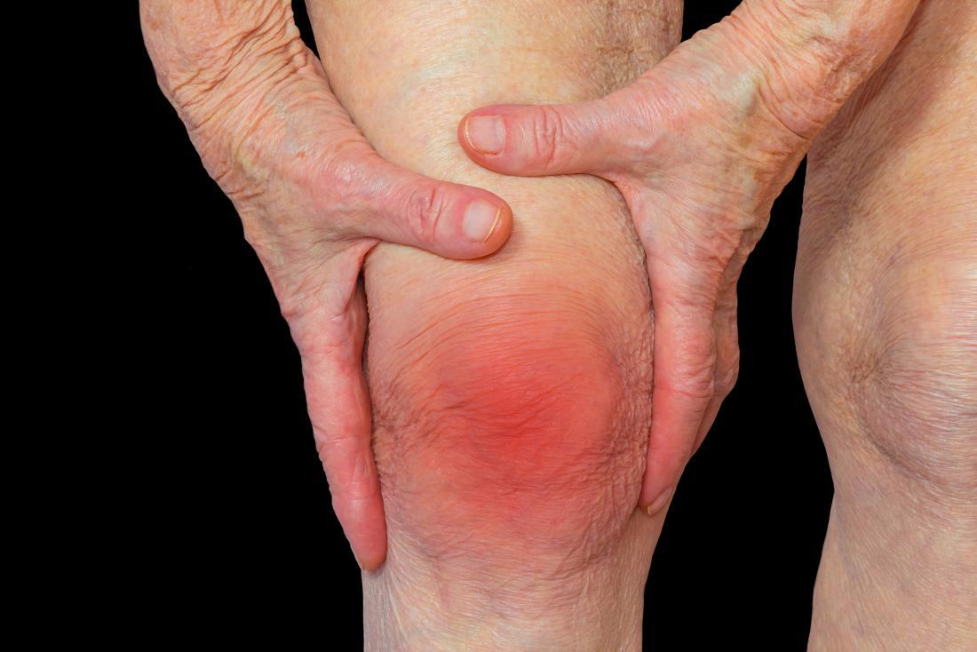 impulzív ízületi fájdalom ízületi folyadék tünetei és kezelése