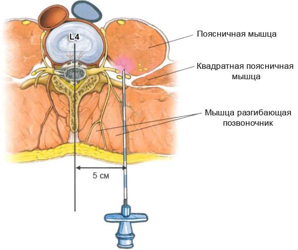 Milyen orvos kezeli a spinalis osteochondrosist?