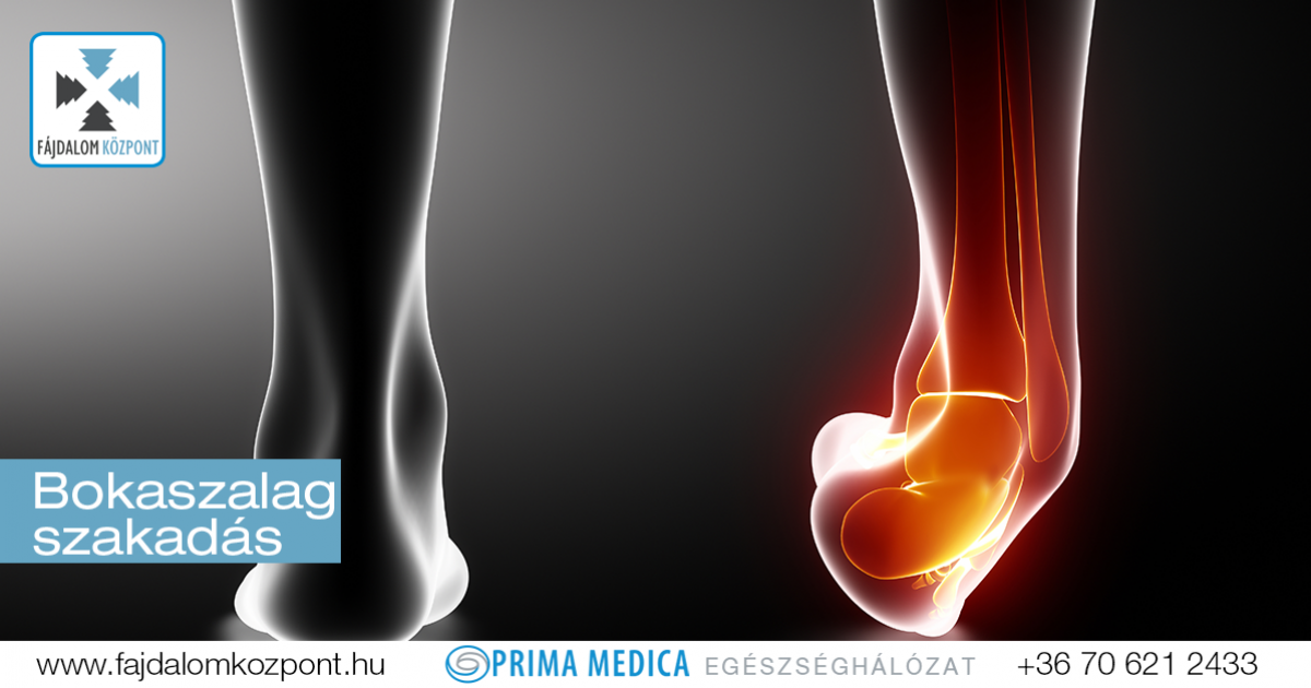 :: Lábszár, boka, láb sérülések és elváltozások - InforMed Orvosi és Életmód portál ::