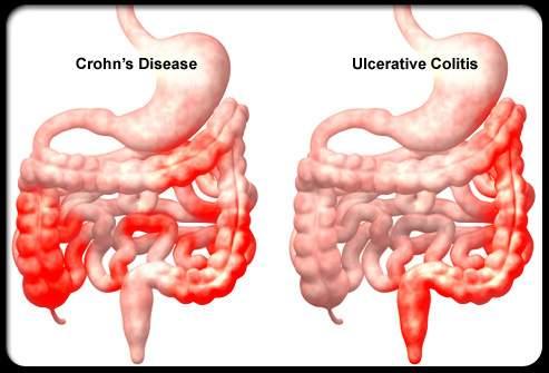 crohn-kór és ízületi fájdalmak