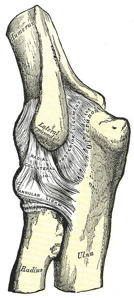 2. fokozatú deformáló artritisz a csípőízületen szérum artrózis kezelés