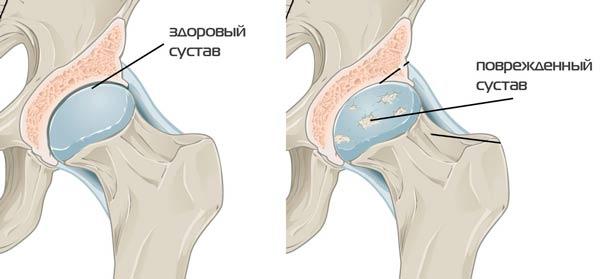 a csípőízületek deformáló artrózisa 1 fok ízületi fájdalom rossz időjárás esetén