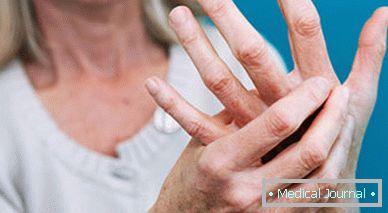 mi a kézízület ízületi gyulladása izmok fájdalma az ízületek körül