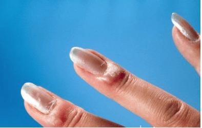 térdgyulladás szinovitisz kezelése félelmetes közös kezelés