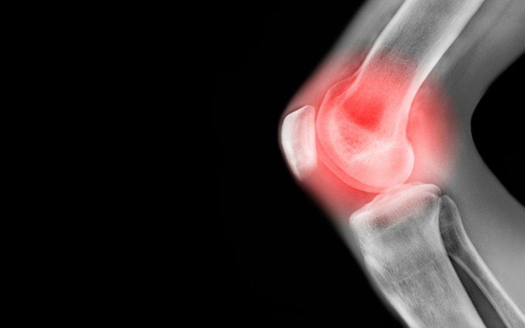 Porc rendellenességek, porckopás (artrózis)   Dr. Gergely Zsolt