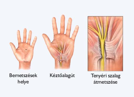 carpal gyulladás és annak kezelése