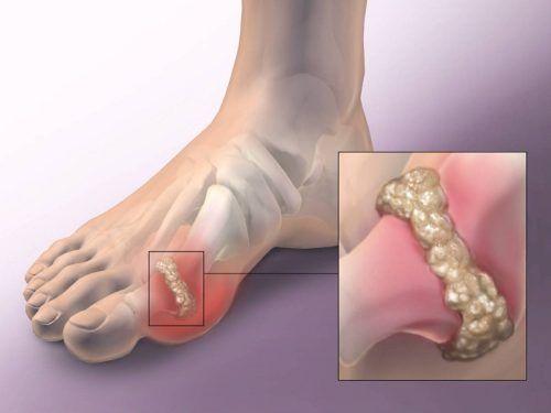 csuklófájás és reuma a térdízület belső oldalsó ínszalagjának szakadása