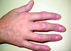Ehlers–Danlos-szindróma – Wikipédia